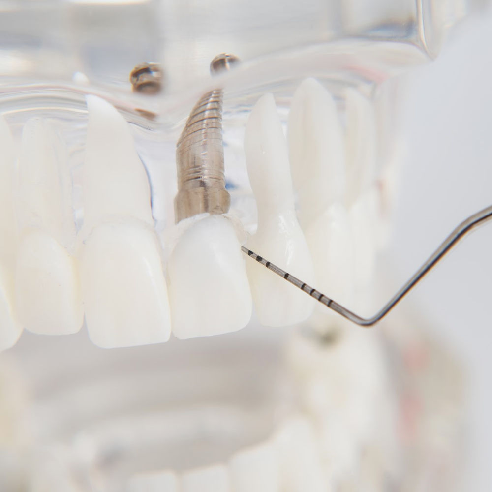 implanty zębów w gabinecie stomatologicznym Dentysta Toruń