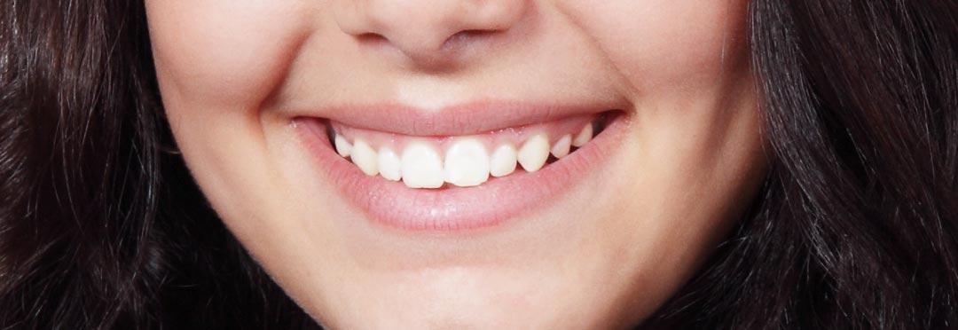 efekty zabiegów stomatologi estetycznej i wybielania zębów