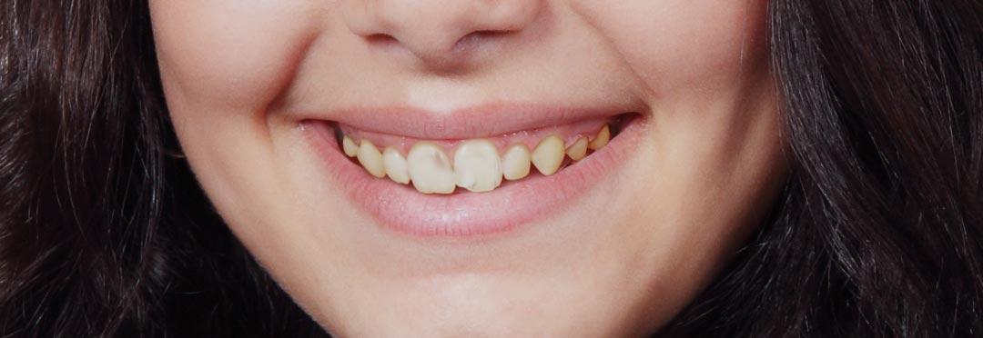 efekty zabiegów stomatologi estetycznej