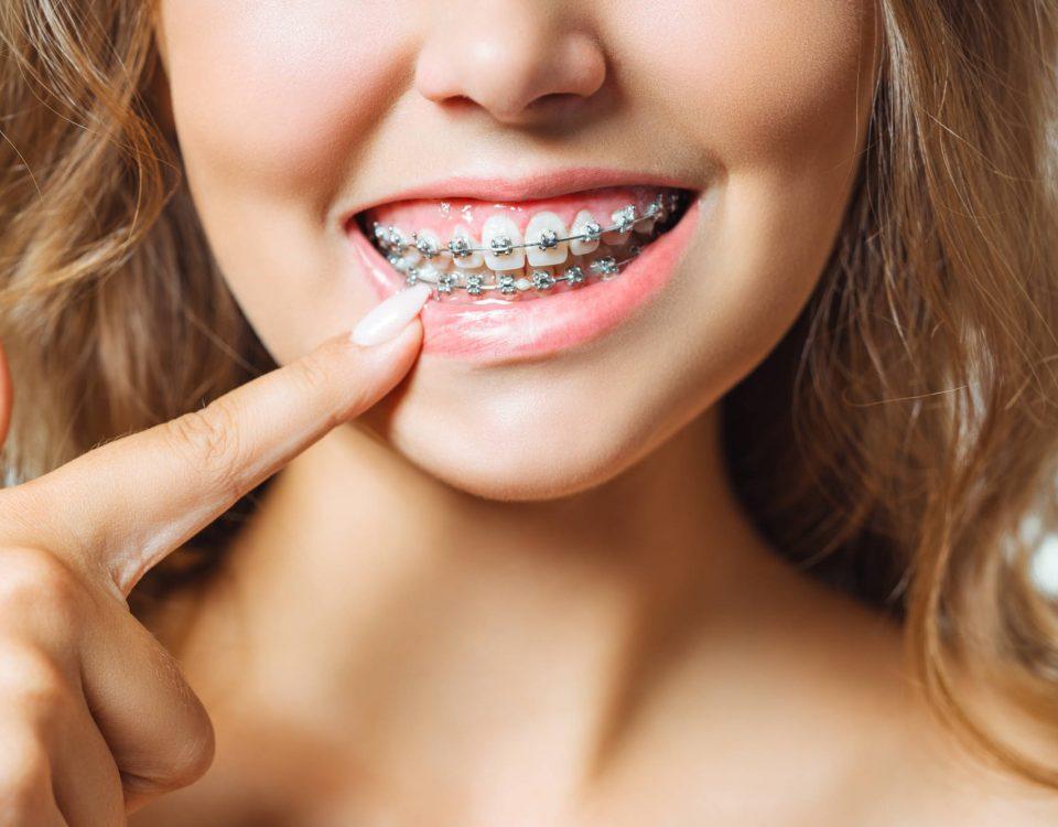 aparat ortodontyczny a leczenie zębów u dentysty